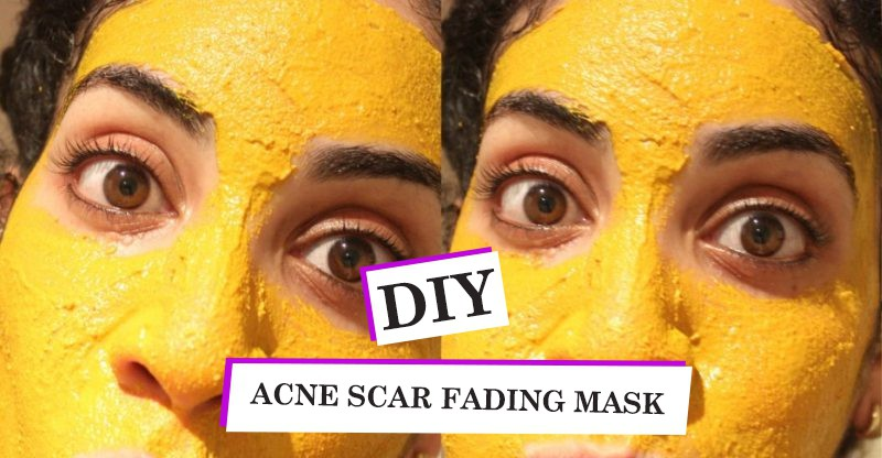 Improved DIY Acne Scar Fading Mask + Quick Acne Tips!
