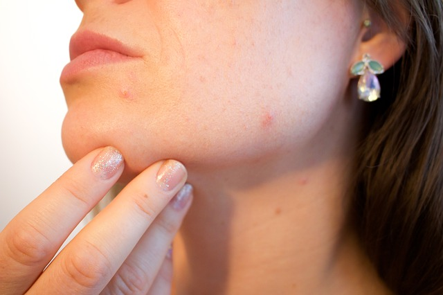 16 Guaranteed Pimple Hacks You Need To Try Now